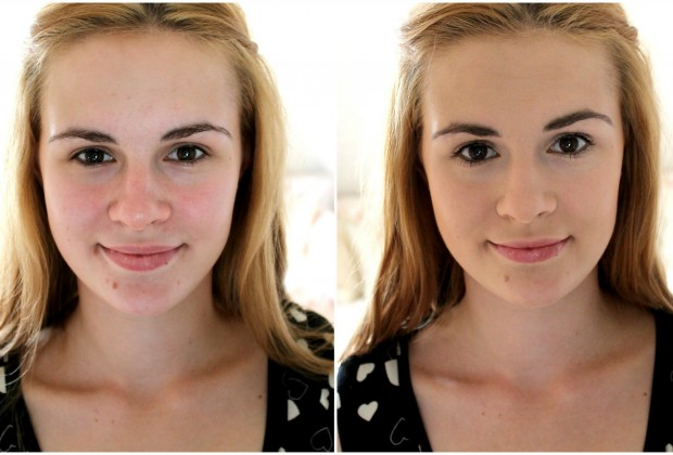 makeup-for-acne